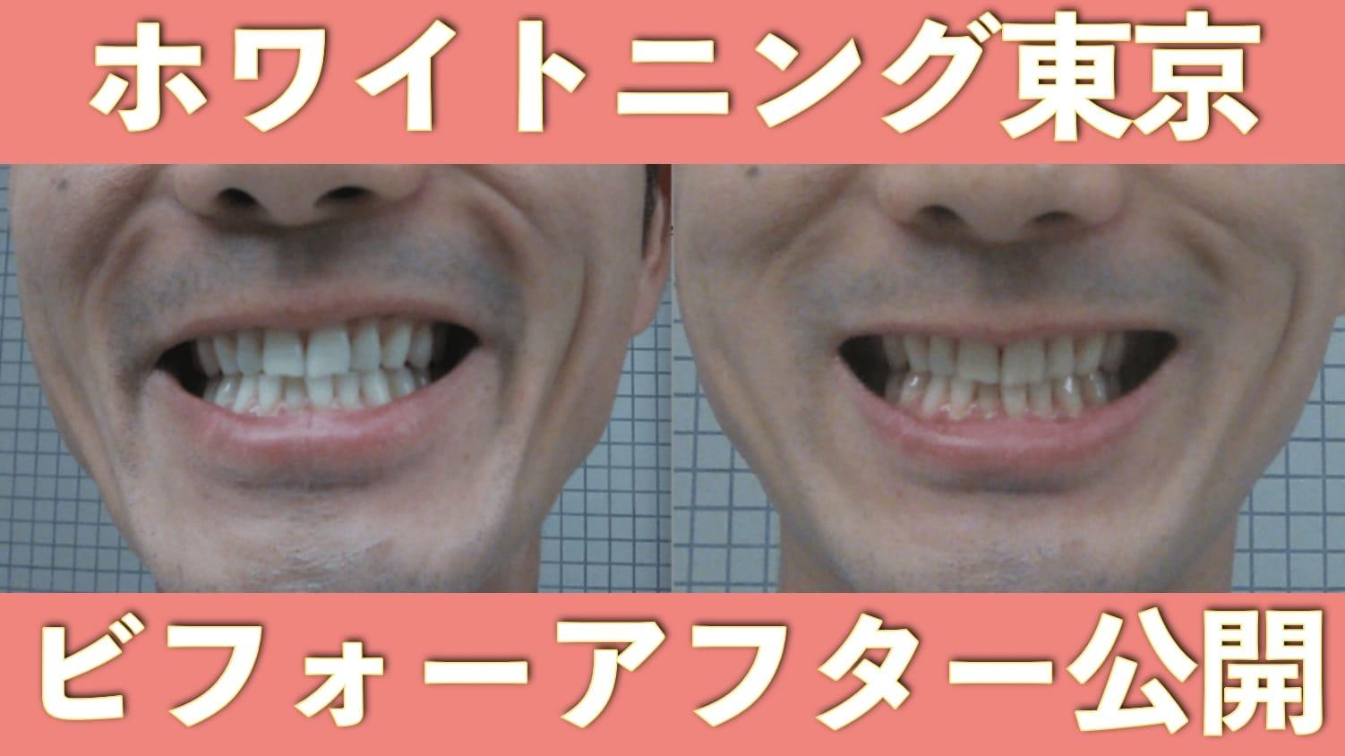 【口コミ評判】ホワイトニング東京に実際に行ってきて満足だった3つのこと。比較画像あり サムネイル画像